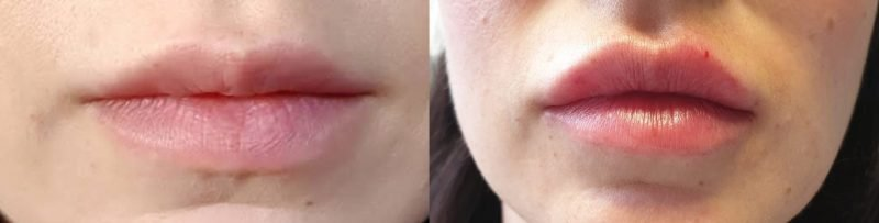 lip fillers before and after 2