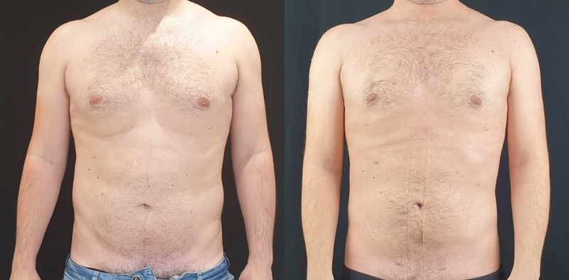 male breast reduction cheshire