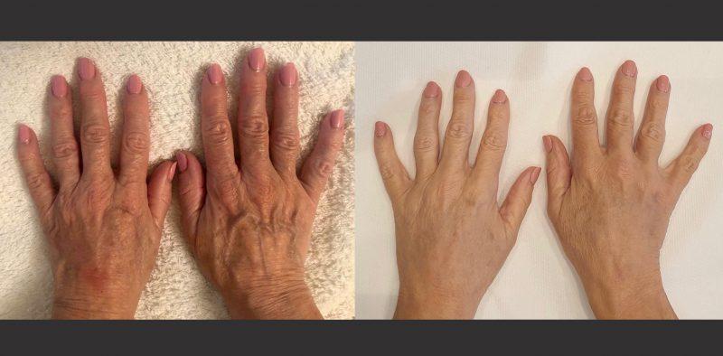 hand rejuvenation treatment altrincham