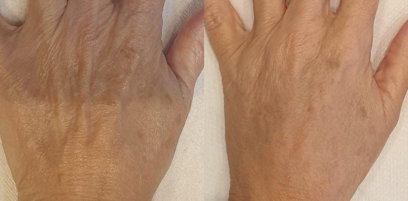 hand rejuvenation hale
