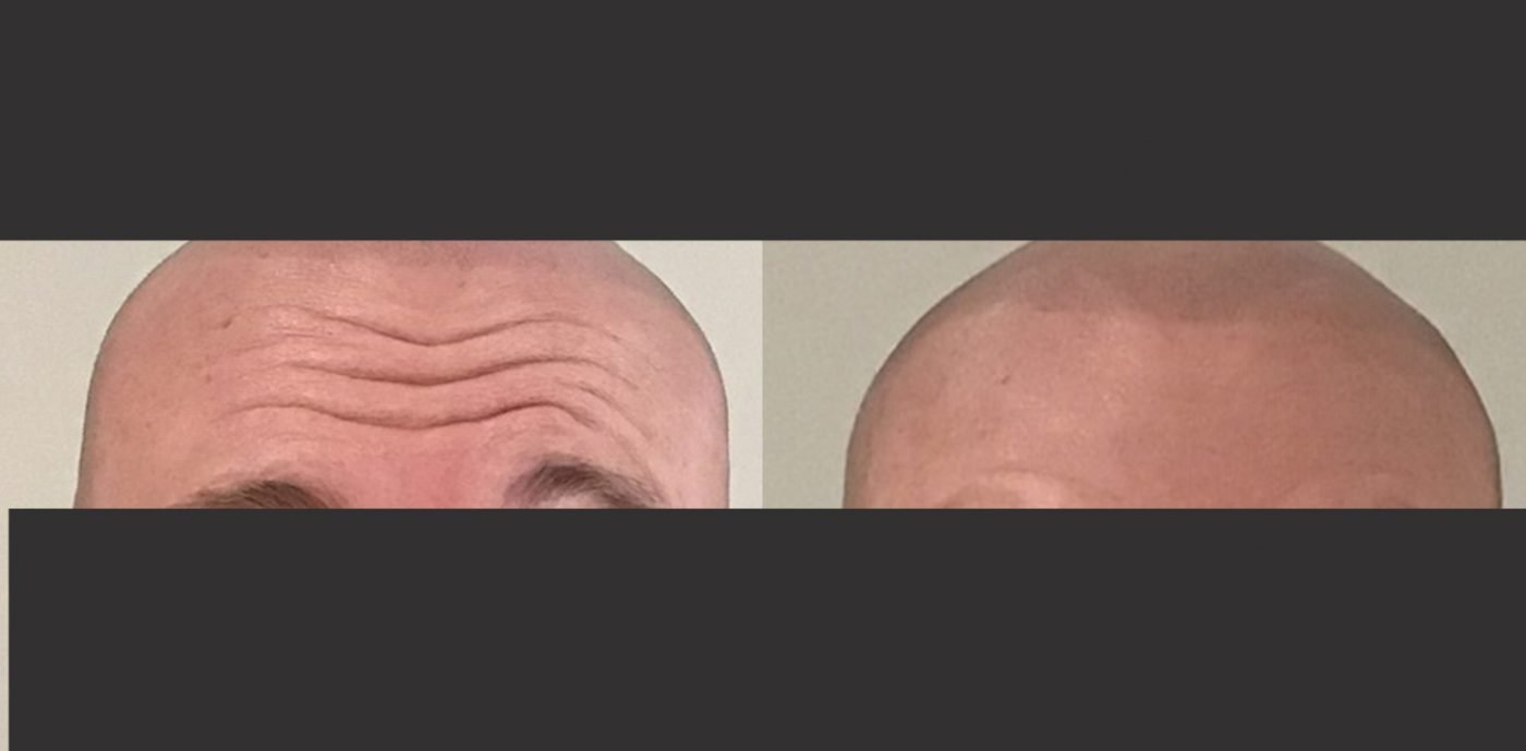 anti wrinkle injections in hale