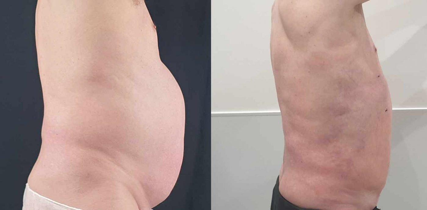 vaser liposuction cheshire