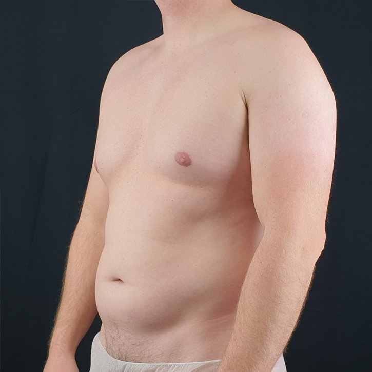 high def vaser liposuction cheshire3