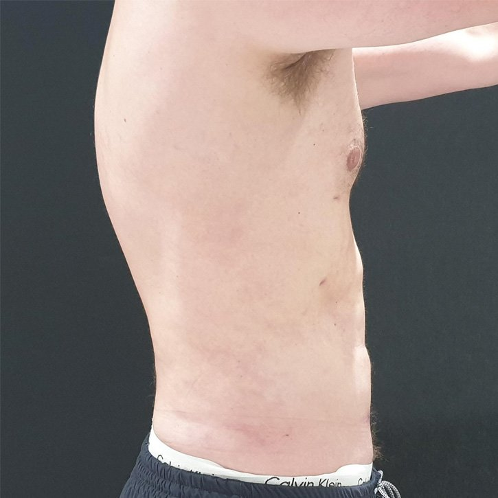 high def vaser liposuction cheshire_0000_2