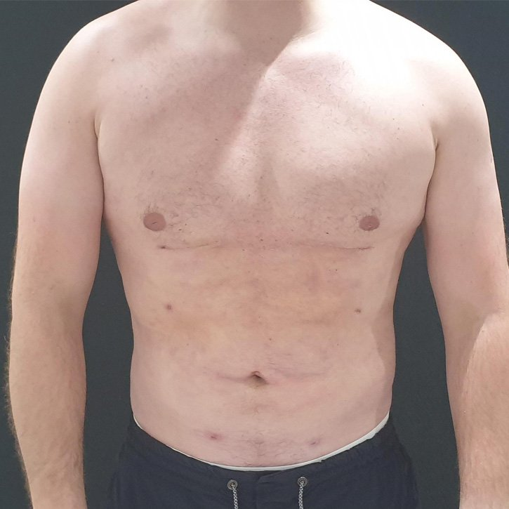 high def vaser liposuction cheshire_0002_1