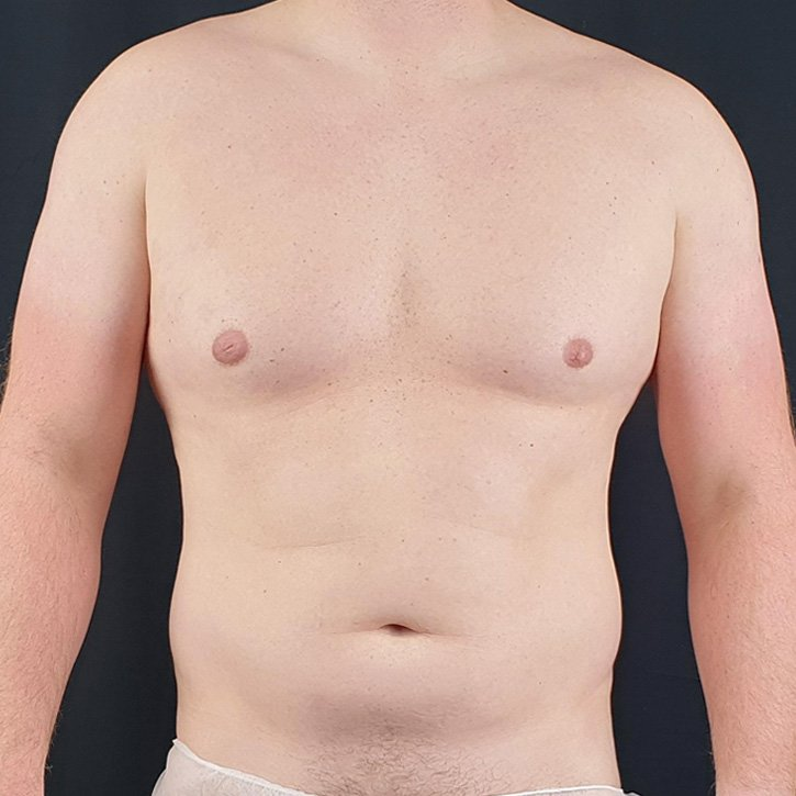 high def vaser liposuction cheshire_0003_1