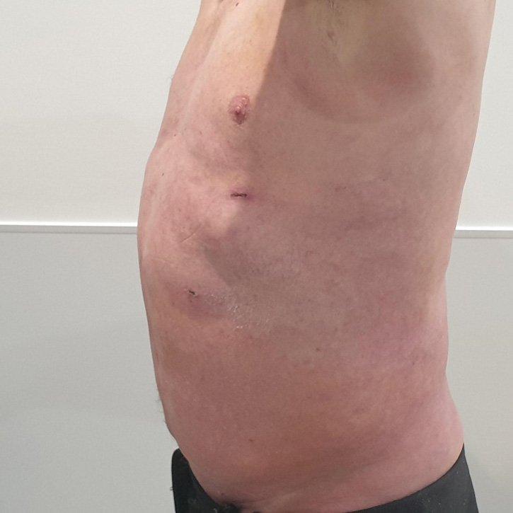 vaser liposuction cheshire_0002_19