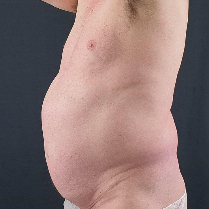 vaser liposuction cheshire_0003_19