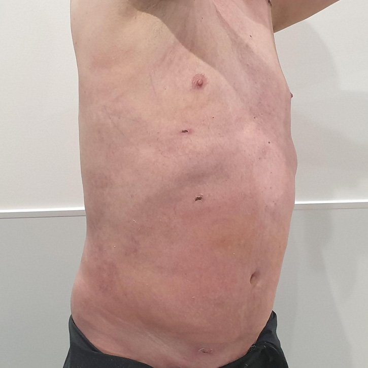 vaser liposuction cheshire_0006_17