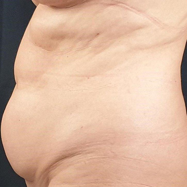 vaser liposuction cheshire_0009_16