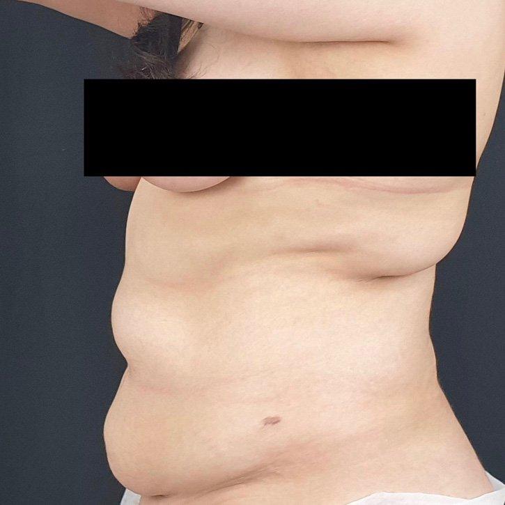 vaser liposuction cheshire_0010_15