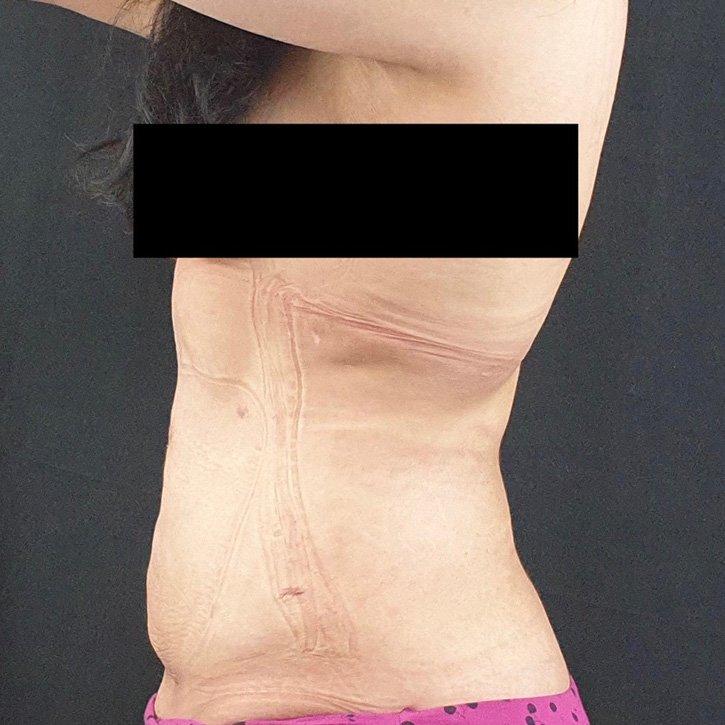 vaser liposuction cheshire_0011_15