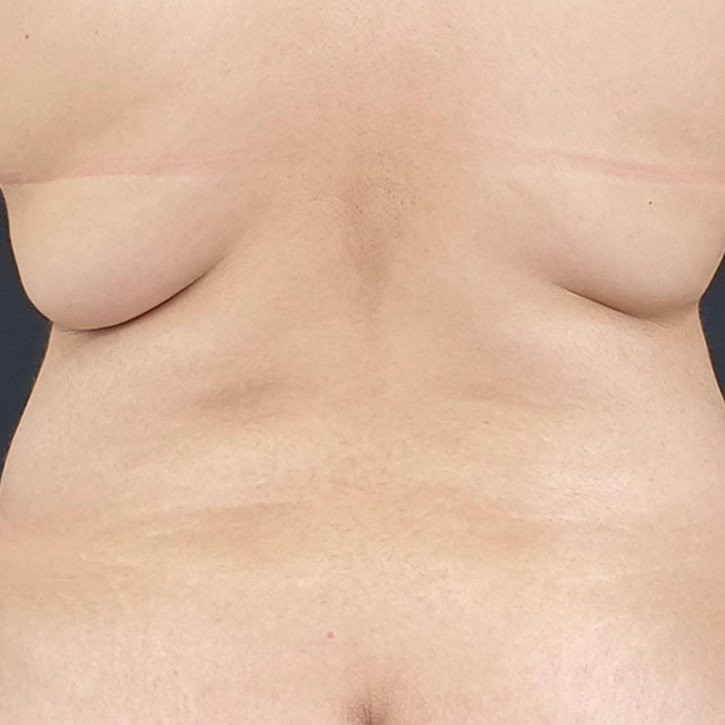 vaser liposuction cheshire_0012_14