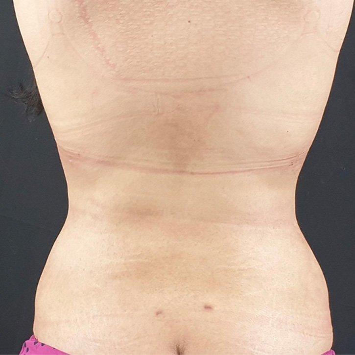vaser liposuction cheshire_0013_14