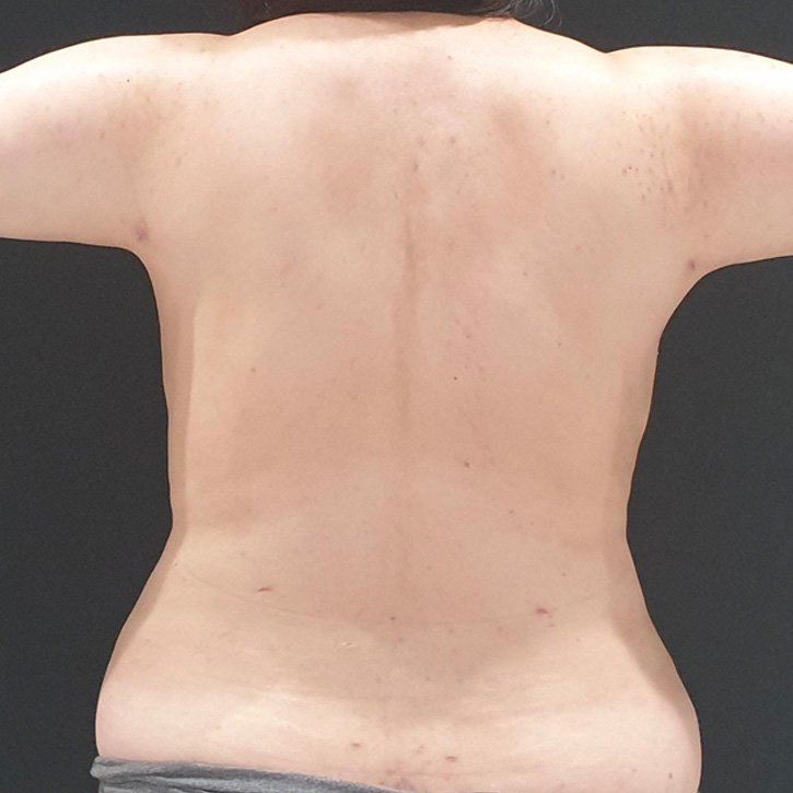 vaser liposuction cheshire_0014_12