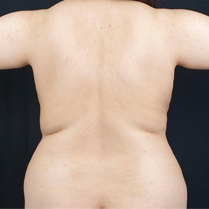 vaser liposuction cheshire_0015_12