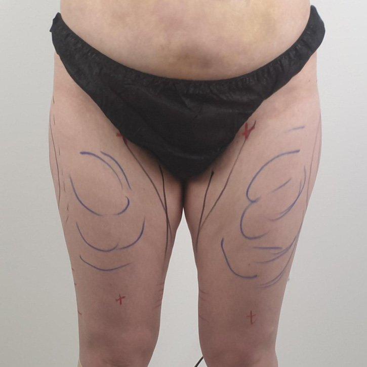 vaser liposuction cheshire_0022_8