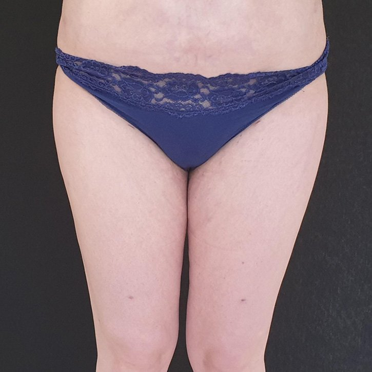vaser liposuction cheshire_0023_8