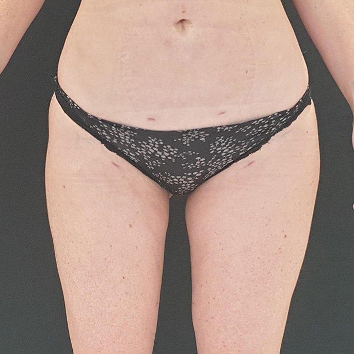 vaser liposuction cheshire_0028_5