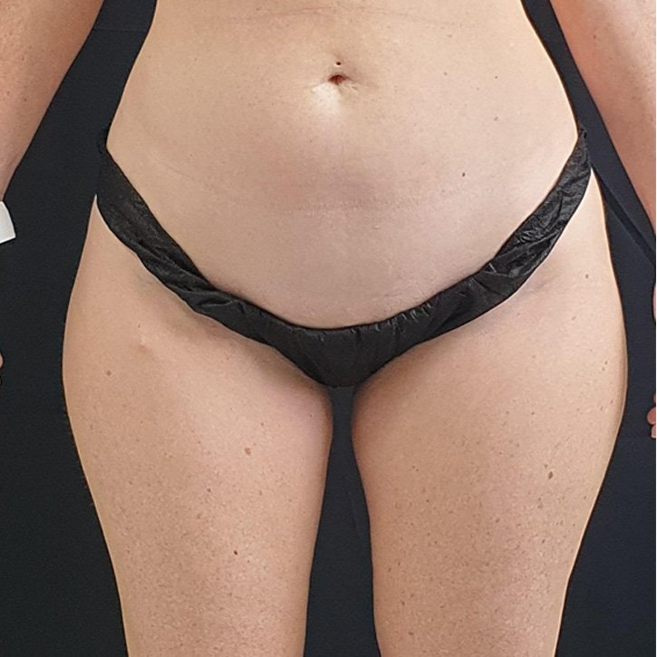 vaser liposuction cheshire_0029_5