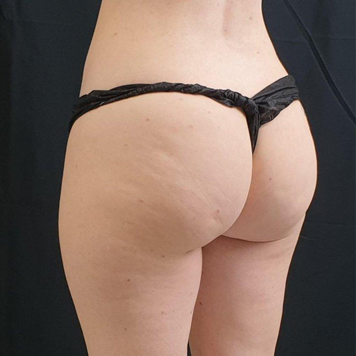 vaser liposuction cheshire_0031_4