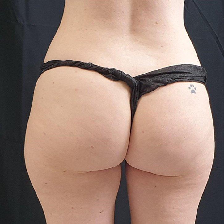 vaser liposuction cheshire_0032_3