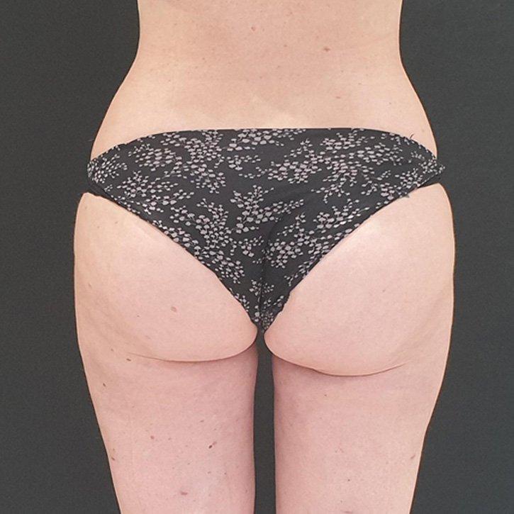 vaser liposuction cheshire_0033_3