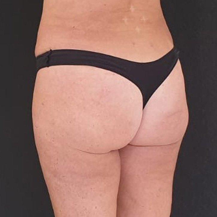 vaser liposuction cheshire_0034_2
