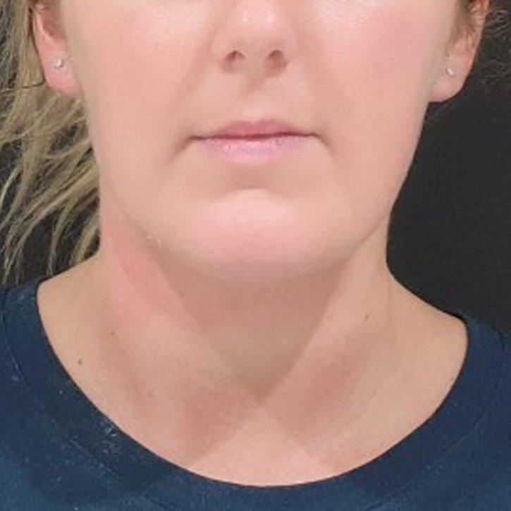 vaser liposuction neck cheshire_0000_3