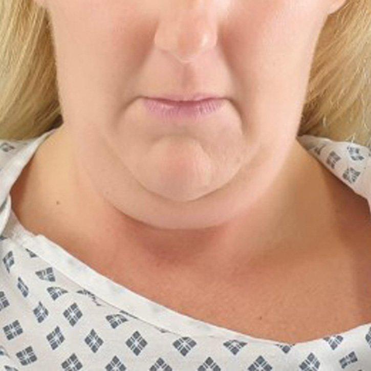 vaser liposuction neck cheshire_0001_3