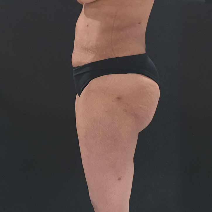 vaser-liposuction-abdomen-and-back-4-after