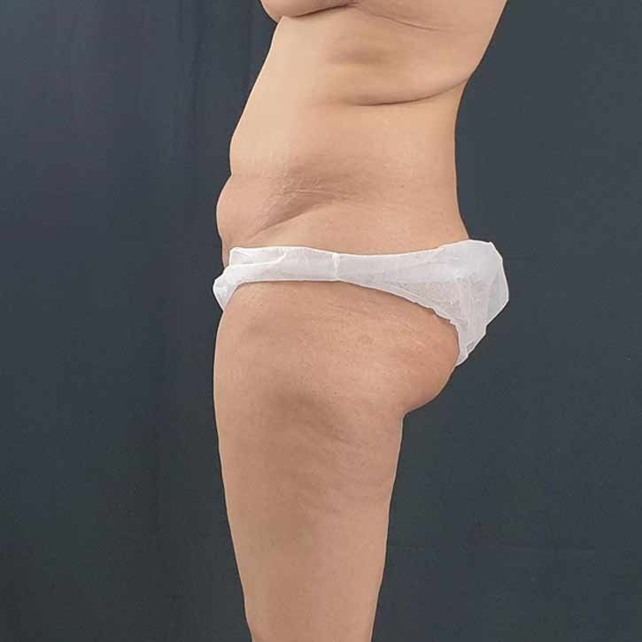 vaser-liposuction-abdomen-and-back-4-before