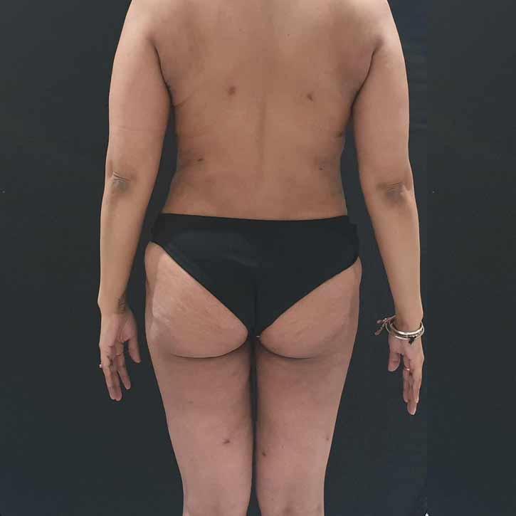 vaser-liposuction-abdomen-and-back-5-after