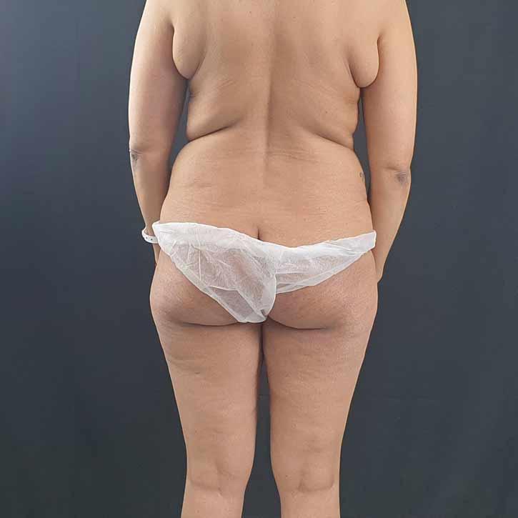 vaser-liposuction-abdomen-and-back-5-before