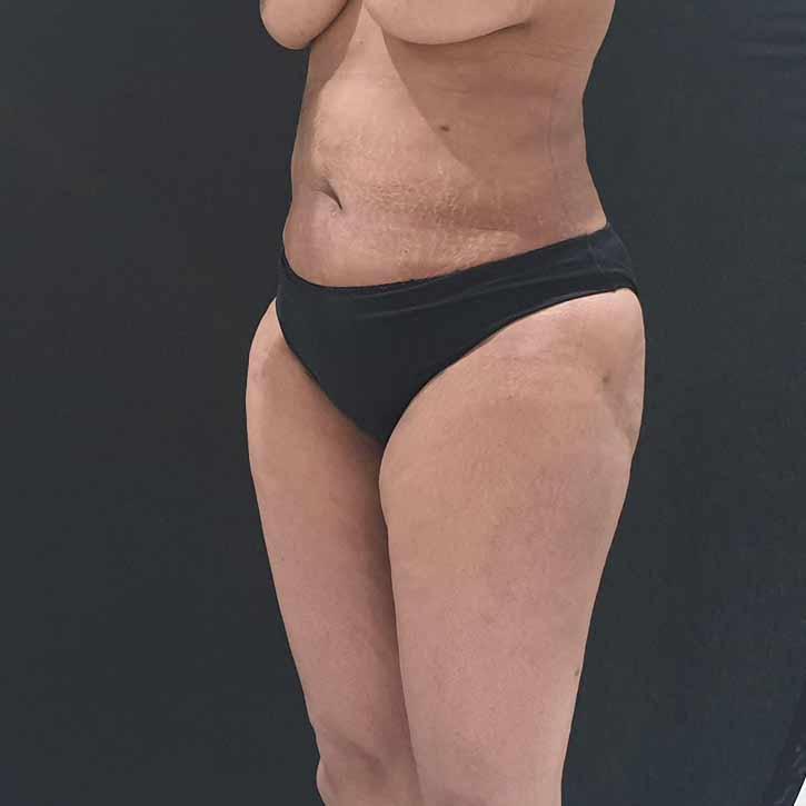 vaser-liposuction-abdomen-and-back-7-after