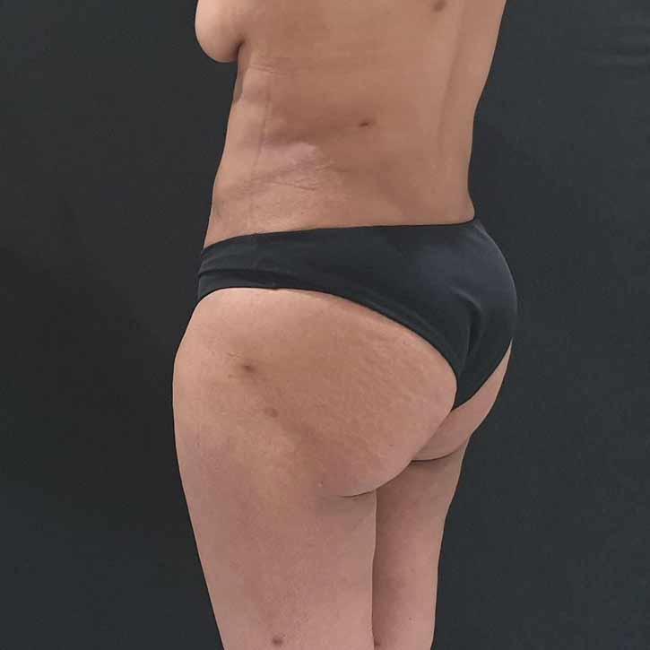 vaser-liposuction-abdomen-and-back-8-after