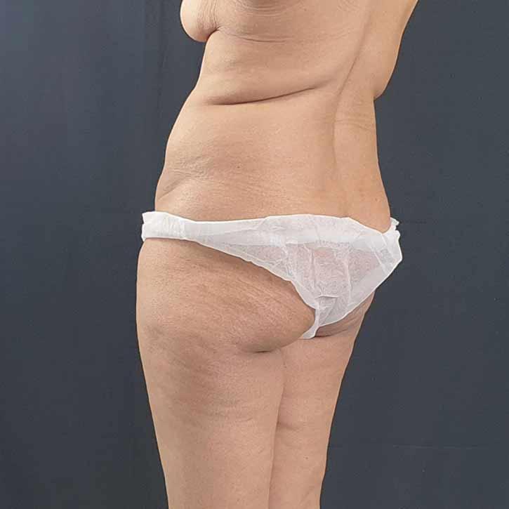 vaser-liposuction-abdomen-and-back-8-before