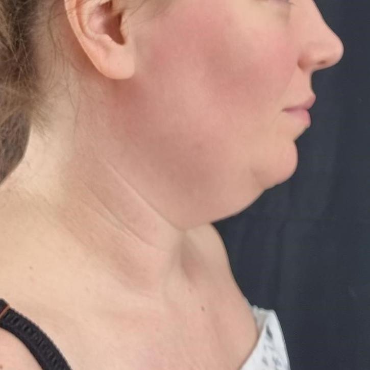 Vaser Liposuction cheshire_0000_Layer 2