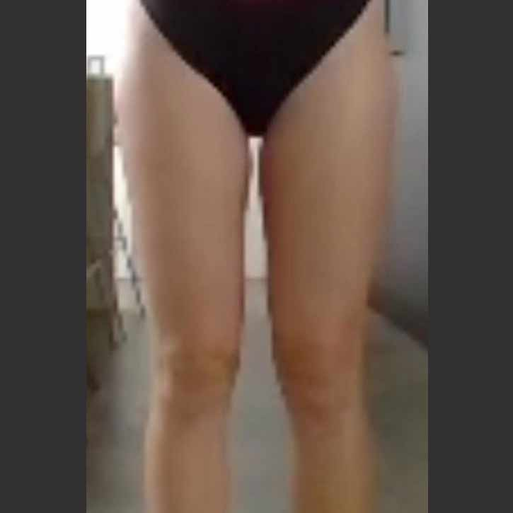 vaser-liposuction-thighs-and-buttocks-cheshire-1-after