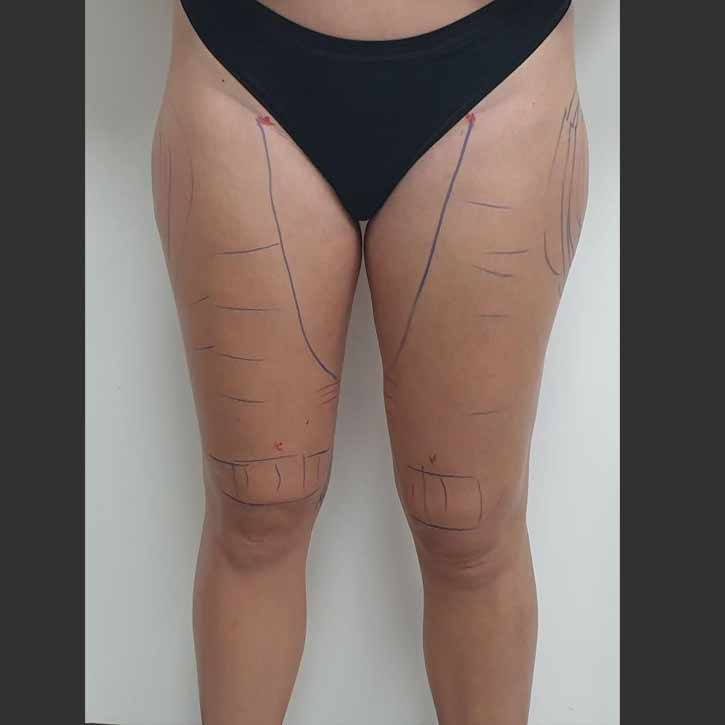 vaser-liposuction-thighs-and-buttocks-cheshire-1-before