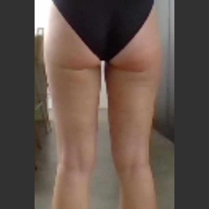 vaser-liposuction-thighs-and-buttocks-cheshire-2-after