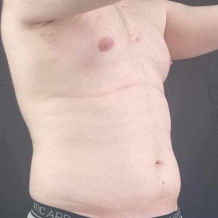 high-def-vaser-liposuction-cheshire-5