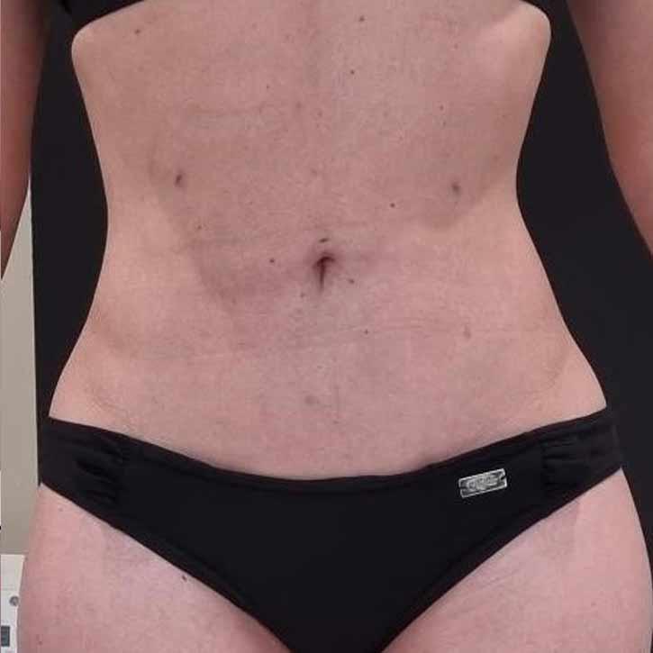 vaser-liposuction-abdomen-and-back-before-12.2