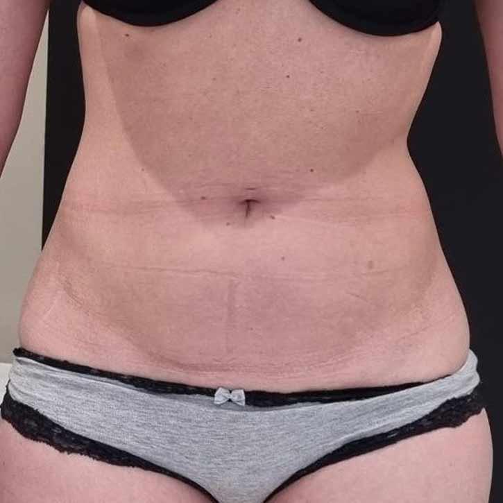 vaser-liposuction-abdomen-and-back-before-12
