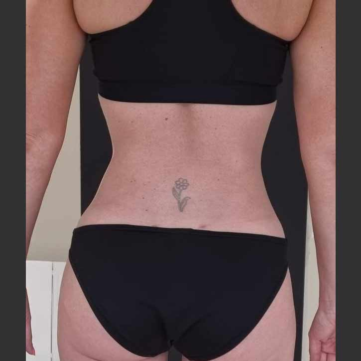 vaser-liposuction-abdomen-and-back-before-13.2