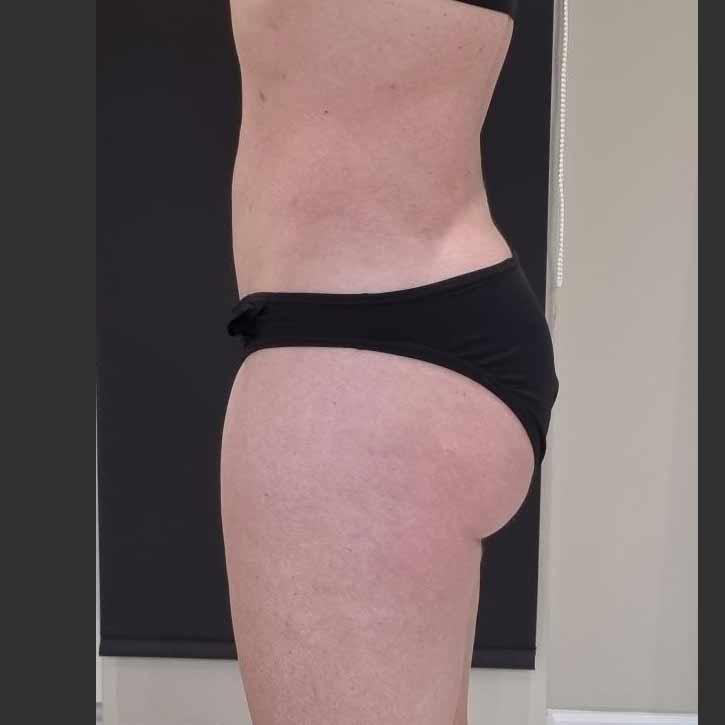 vaser-liposuction-abdomen-and-back-before-14.2
