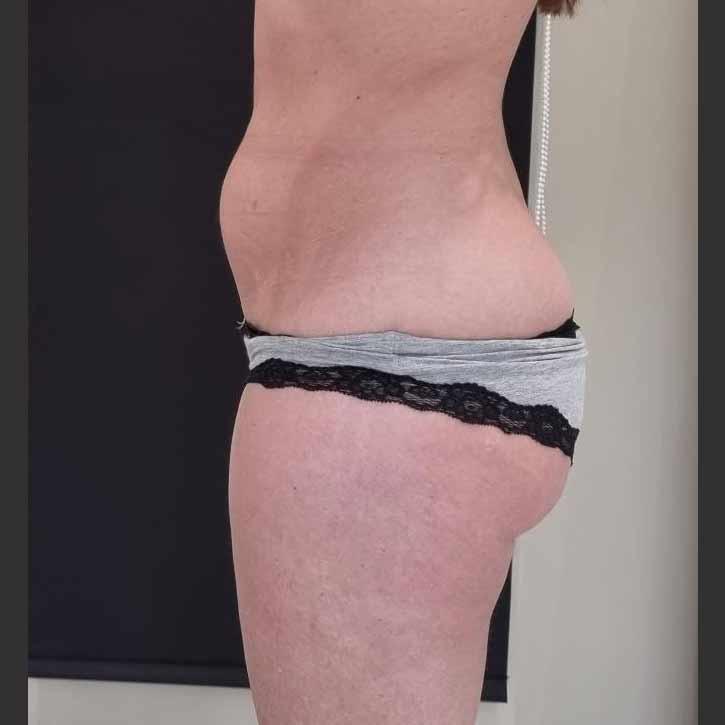 vaser-liposuction-abdomen-and-back-before-14