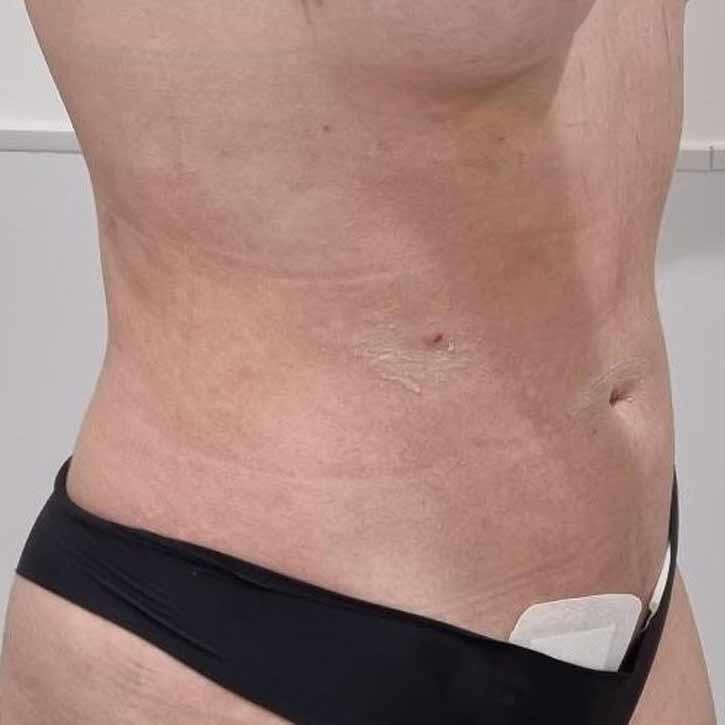 vaser-liposuction-abdomen-and-back-before-15.2