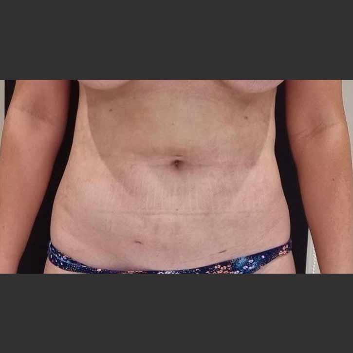 vaser-liposuction-abdomen-and-back-before-16.2