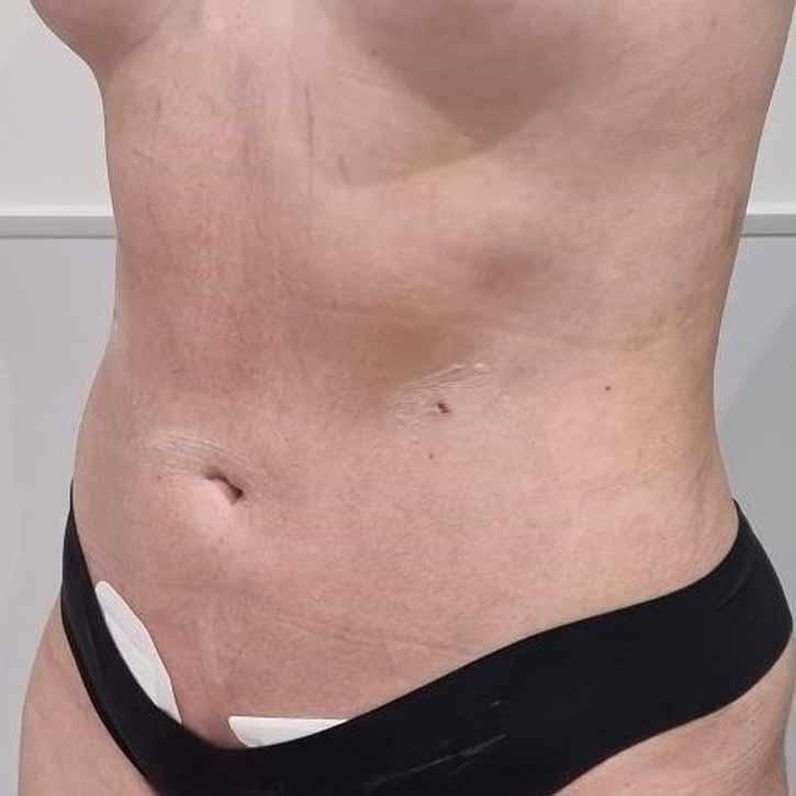 vaser-liposuction-abdomen-and-back-before-18.2